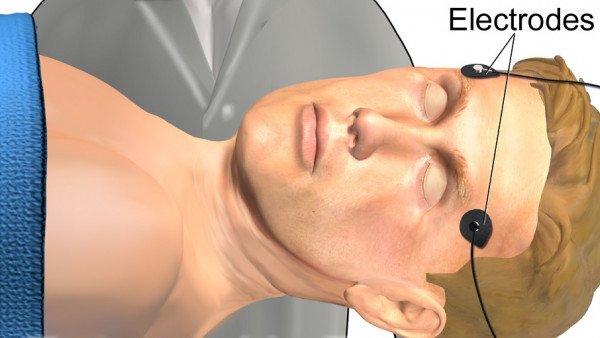 Resultado de imagen de Terapia electroconvulsiva IMAGENES